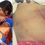 She Carried Out Her Own – CAESAREAN SECTION TO GIVE BIRTH.