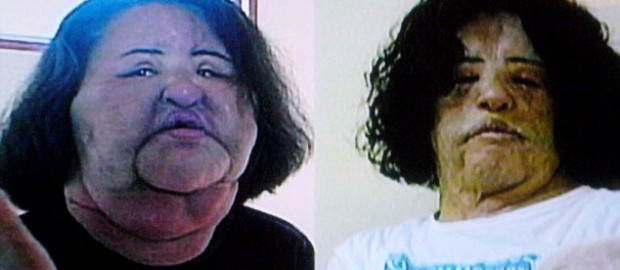 Korean Woman Disfigured