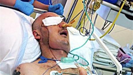 Life Saving Face Transplant