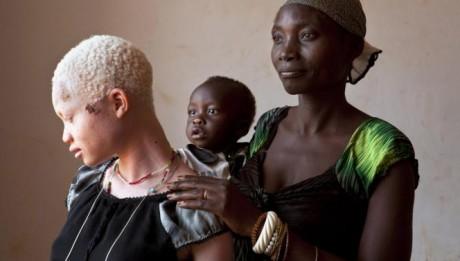 Tanzania prohibits witch doctors to curb albino killings