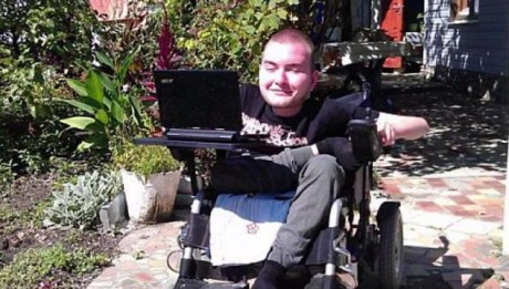 Russian man volunteers for world's first human head transplant surgery