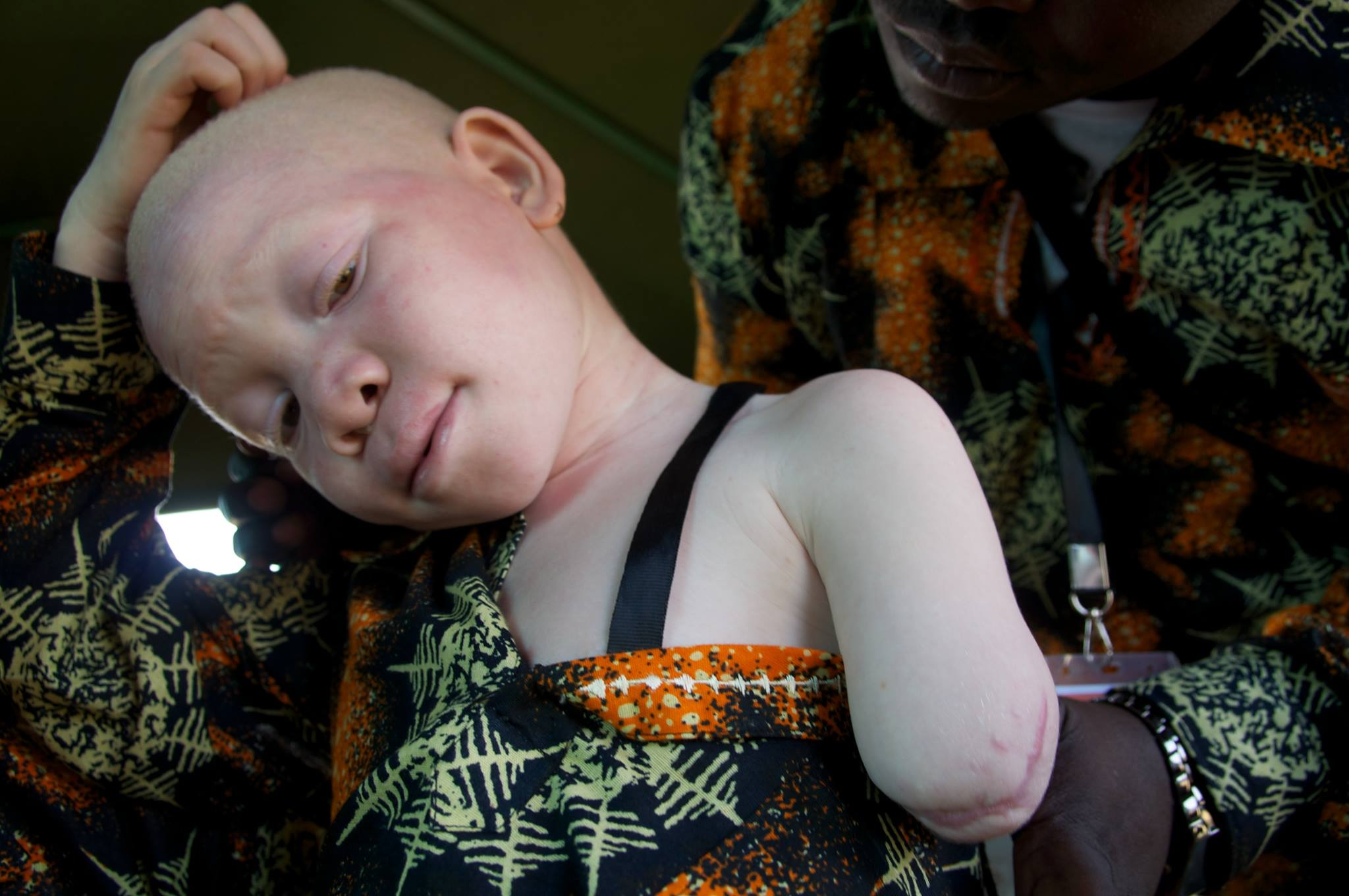 Hope for Nigeria African albinos killed for body organs ...