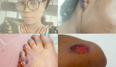 Actress Bewaji Folashade Escape From Kidnappers Suffers Severe Injuries