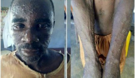 Kano First Monkey Pox Case Patient Flees From Hospital