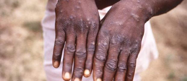 Monkey pox: Bayelsa intensifies campaign, releases emergency phone lines