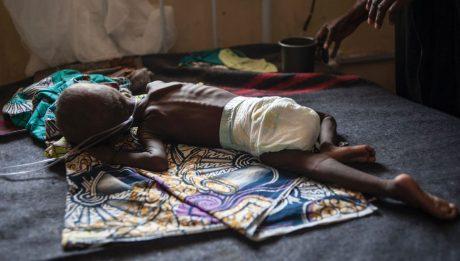 Malnutrition threatens child survival in North East